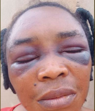 DRUG DEALERS BEAT A WOMAN AND HER DAD MERCILESSLY AFTER A PACKAGE OF INDIAN HEMP THEY KEPT ON HER FARMLAND WENT MISSING IN ONDO STATE