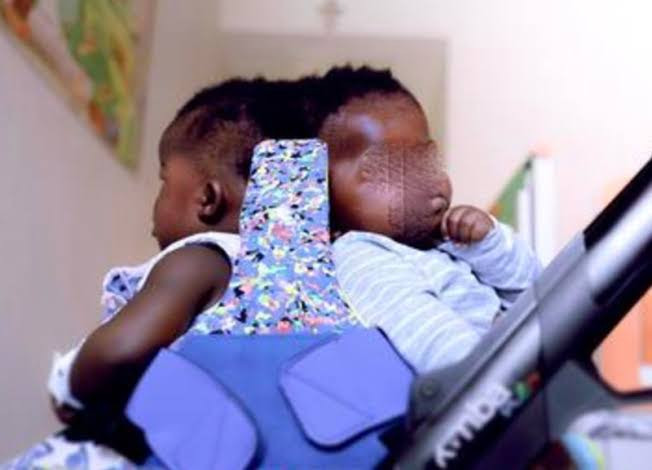 Description: Twins conjoined at the head separated successfully in first-of-its-kind surgery