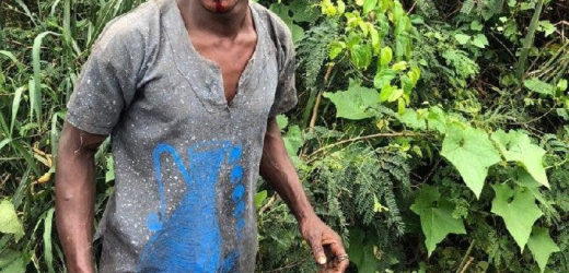YOUNG MAN ESCAPES DEATH AFTER BEING ATTACKED BY SUSPECTED RITUAL KILLER IN IBADAN